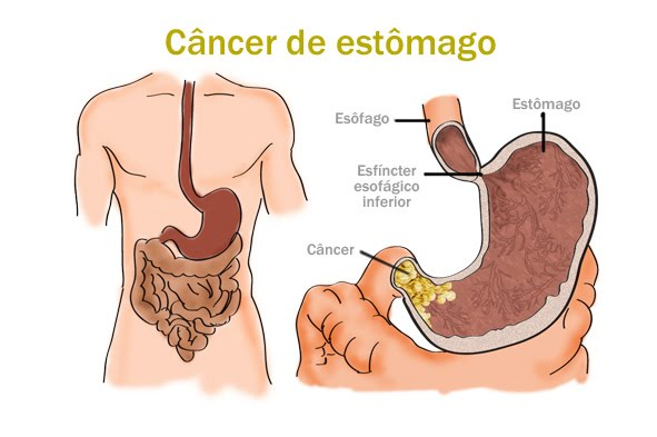 cancer estomago
