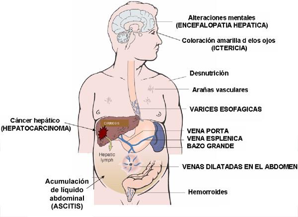 varices esofagicas