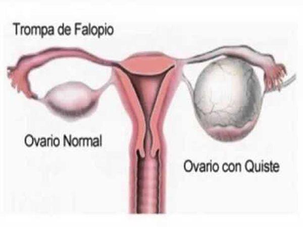 quiste de ovarios