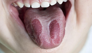 glositis