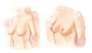 senos flacidos