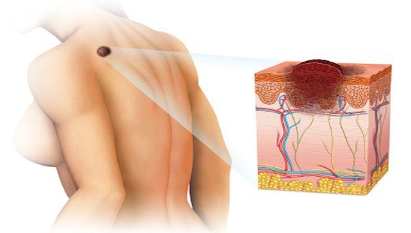 cancer en la piel
