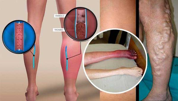 trombosis en las piernas
