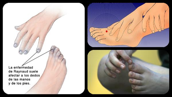 enfermedad de los dedos