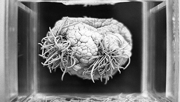 parasitos en cerebro