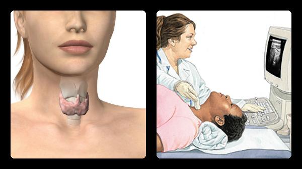 trastorno tiroides