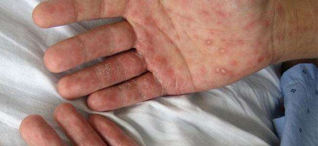cancer en las manos