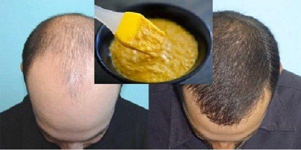 mascarilla para pelo