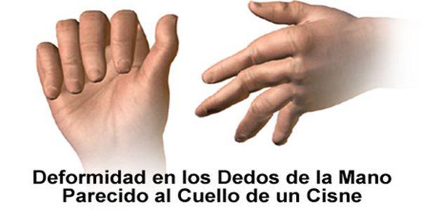 reumatoide artritis