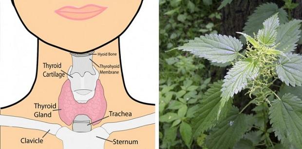 tiroidesss
