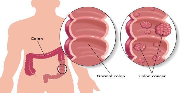 medical illustration of the effects of colon cancer