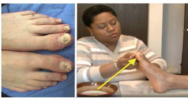 Curamos el hongo de las uñas en los pies las revocaciones