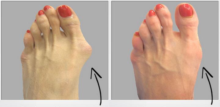 Para esto no se necesita cirug a deshazte de los juanetes for Operacion de pies