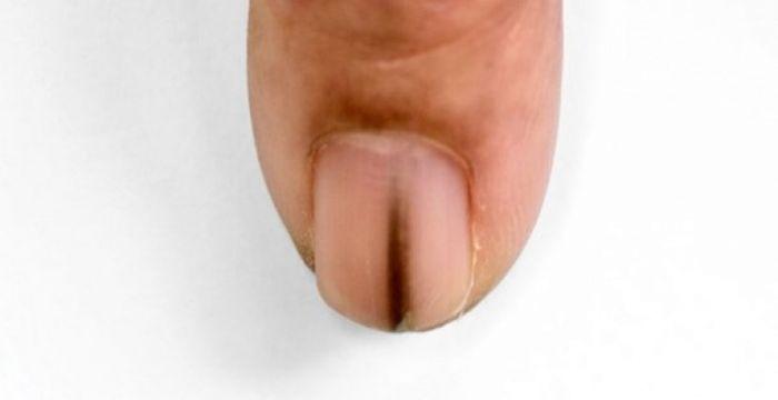 linea en uñas