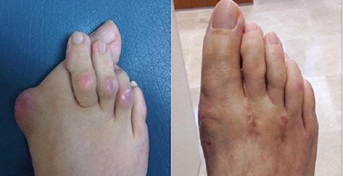 artritis en pie