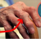 artritiss