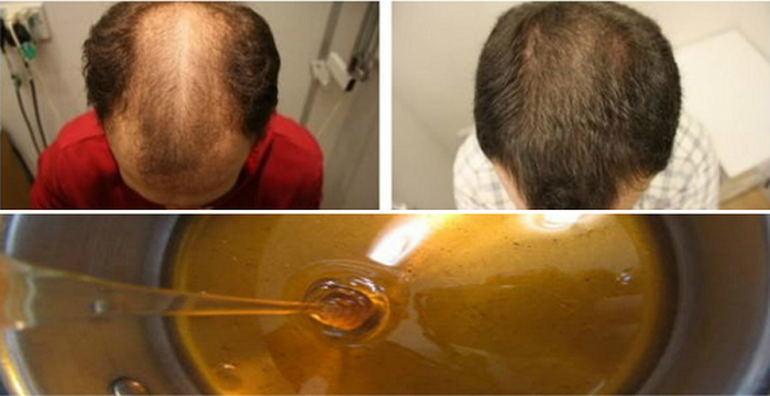 El medio para el secamiento rápido de los cabello