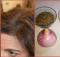 cebolla y cabello