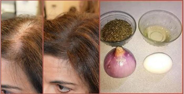 La máscara del hierro para los cabellos