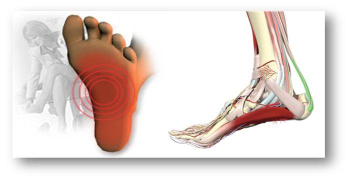dolor de pie