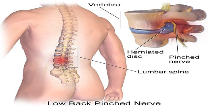 nervio pinchado