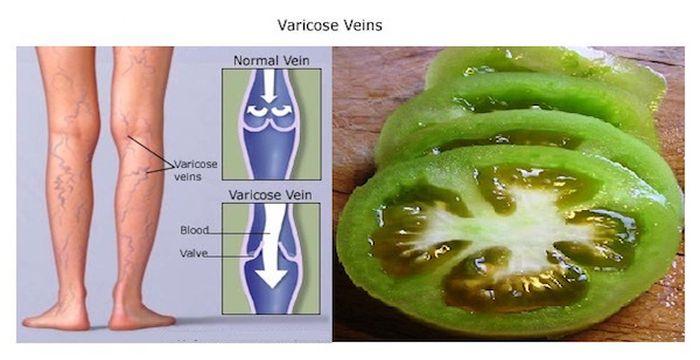 tomate y venas varicosas