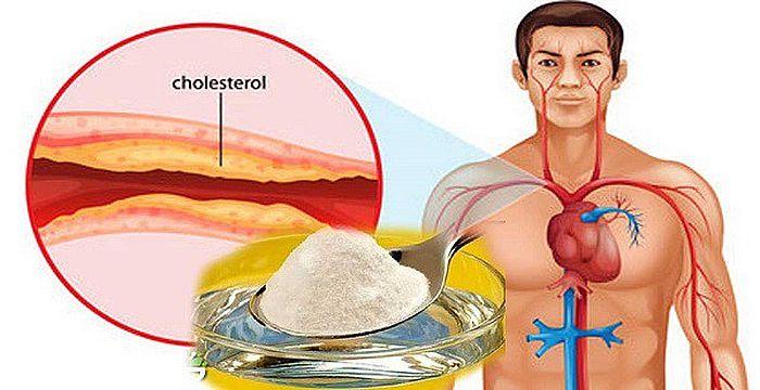 colesterol amish