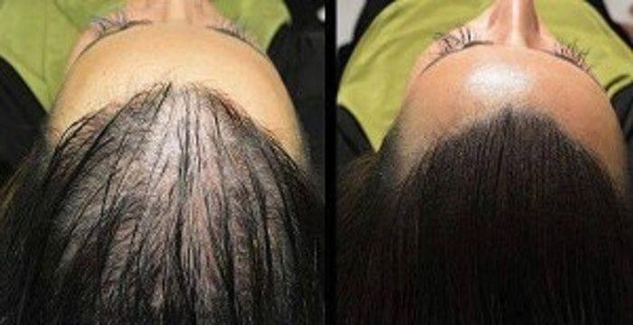 crecimiento de pelo