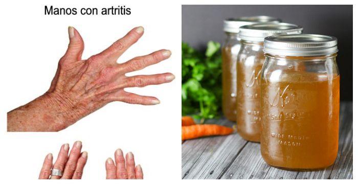 manosartritis