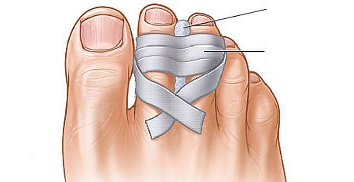 dedos juntos