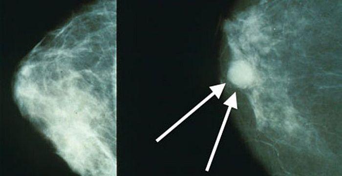 localiza-al-cancer