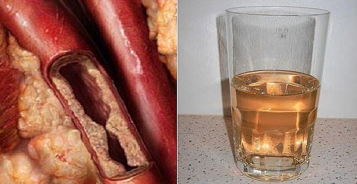 arteriass