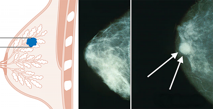 senos-y-cancer
