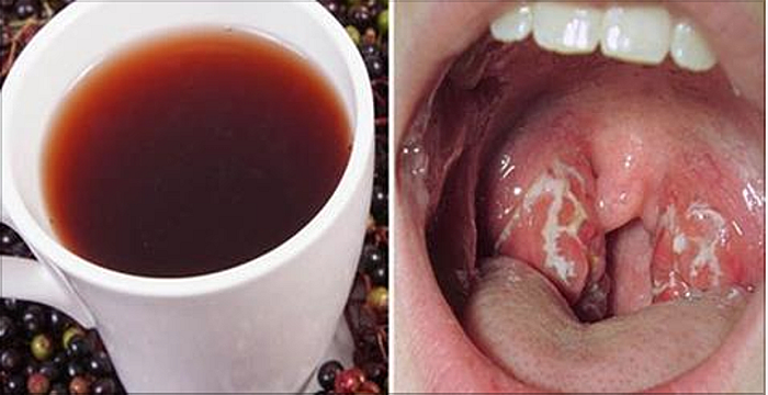 Resultado de imagen para infeccion en la garganta