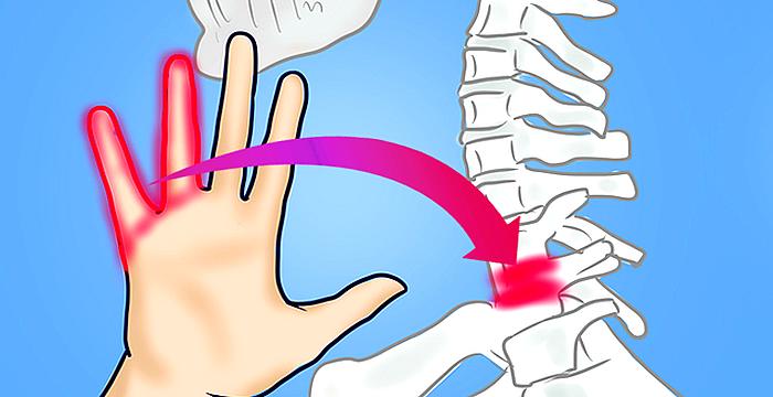 Los ejercicios aplicado a intervertebral las hernias